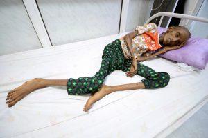 Opfer eines vergessenen Krieges: Auswirkungen der saudischen Politik der Aushungerung im Jemen
